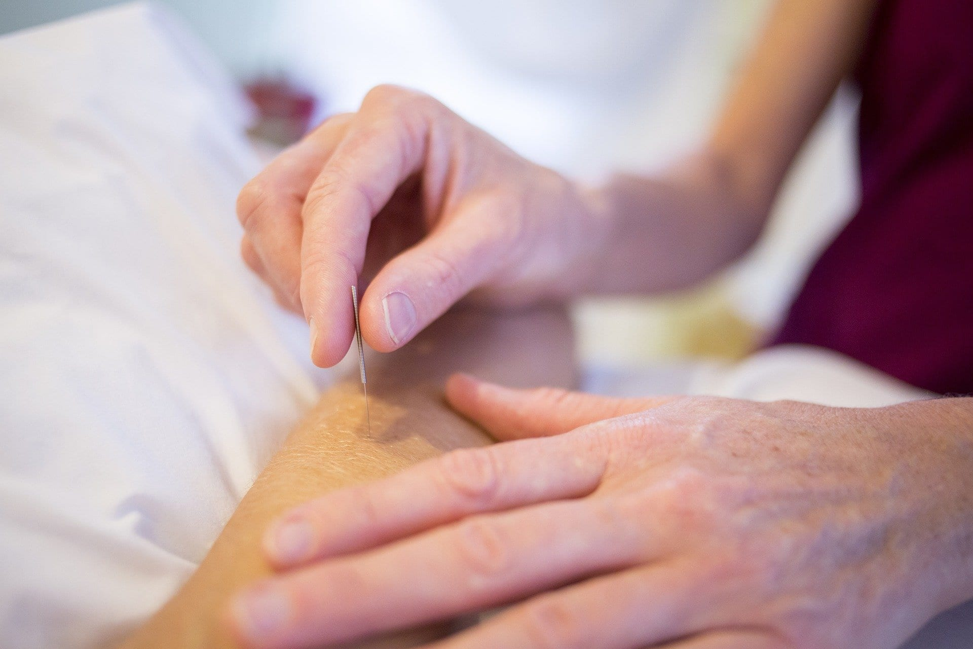 dry needling acupuncture acu benefits acupuncture smithtown
