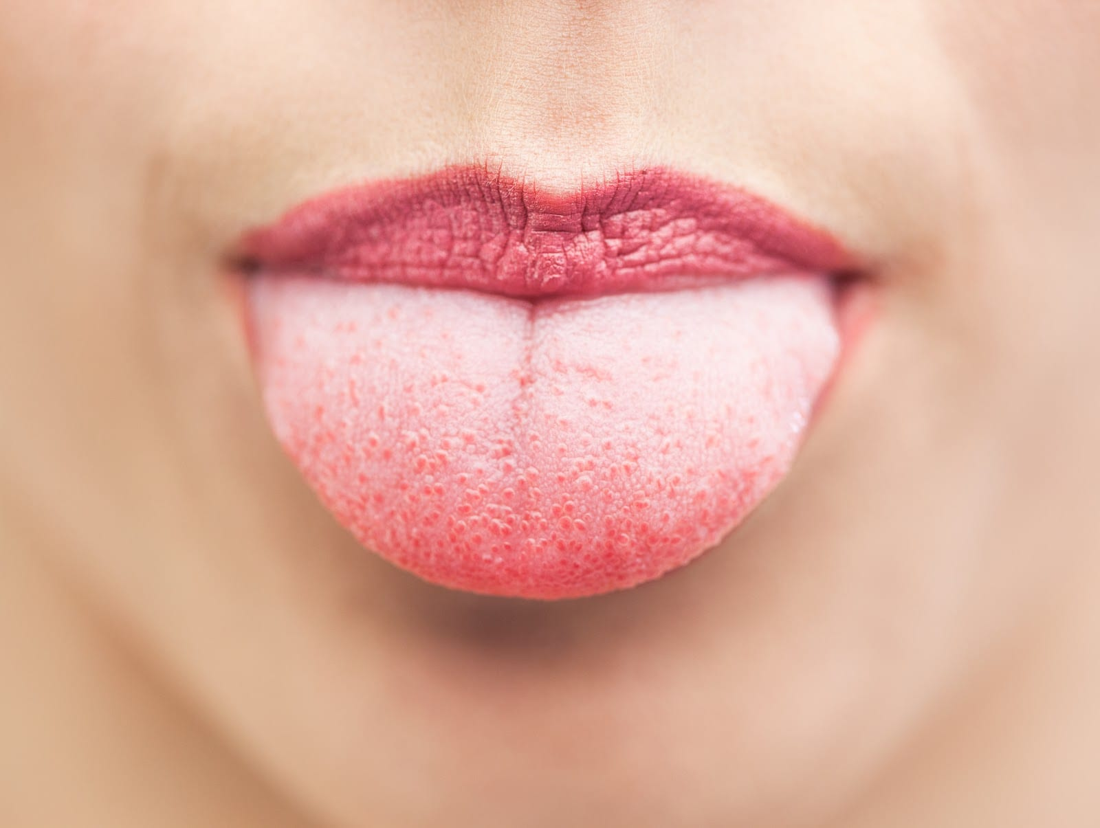 The tongue gives us many important clues about our health and signs of medical conditions and its importance for holistic medicine.